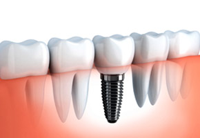 implant_dentistry
